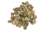 kamienie na woreczku żółciowym